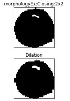 dilation | Image segmentation